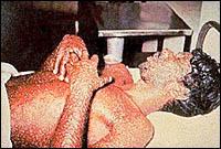 Smallpox1